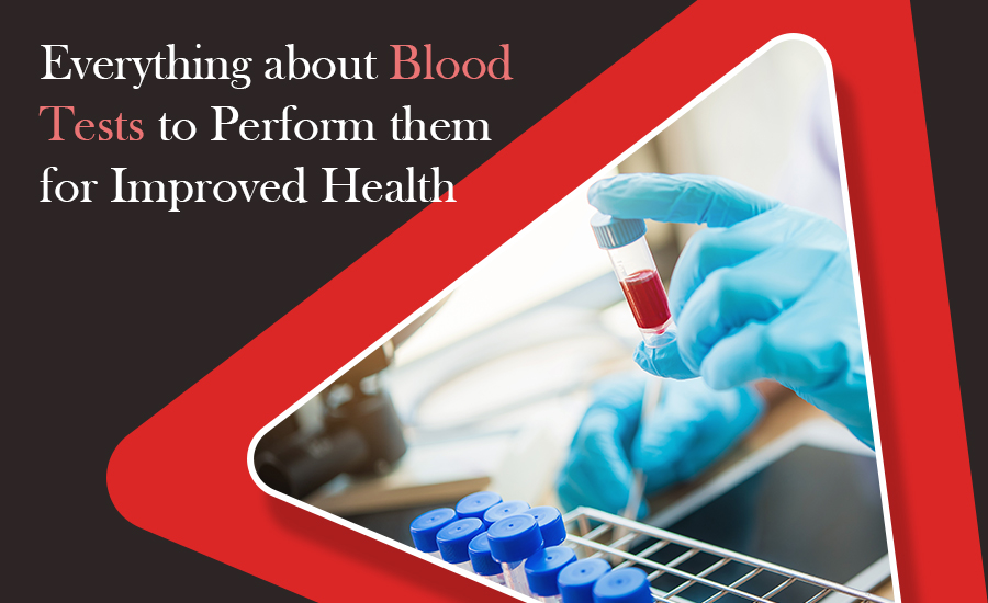 Everything about Blood Tests to Perform them for Improved Health