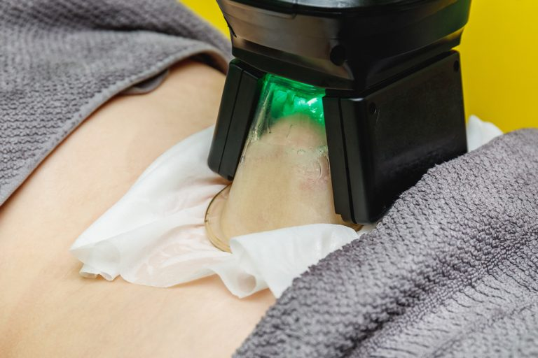 Lose your Fat by Using Coolsculpting Machine